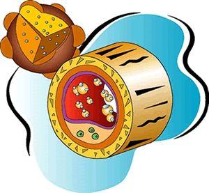 Kolesterol Degerleri İdeal Kolesterol Değerleri Ne Olmalıdır?